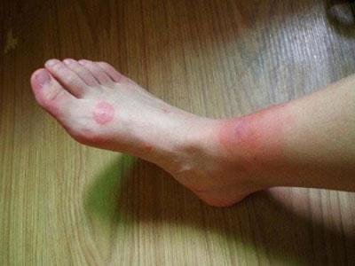 Cẩm nang xử lý rết cắn và phương pháp điều trị